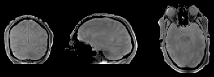 Premières images IRM in vivo en transmission parallèle à 7 teslas : une collaboration DSM-DSV fructueuse